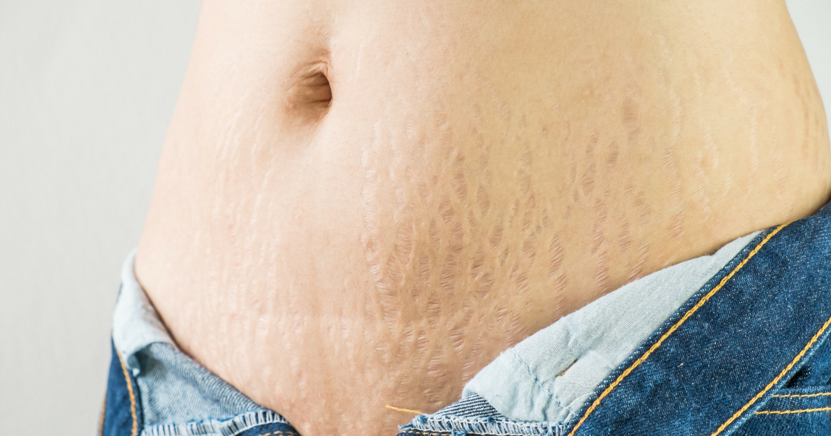 scar and stretchmark camouflage and treatments