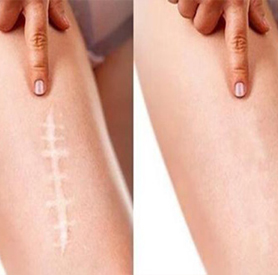 Paramedical Tattoo